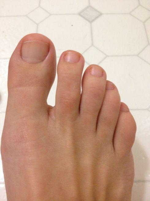 Yellow Toenails And Diabetes: Sunset Blonde's Blog